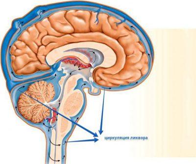 Повышенное внутричерепное давление: симптомы, лечение
