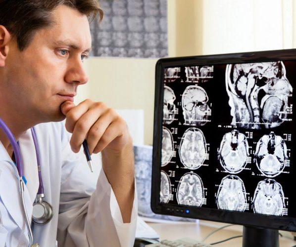Внутричерепное давление врач