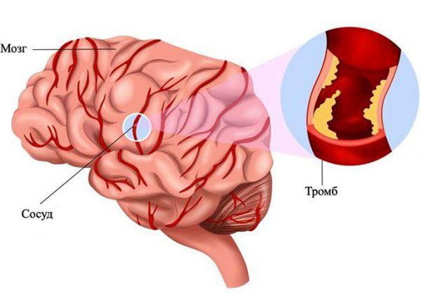 Тромб мозг