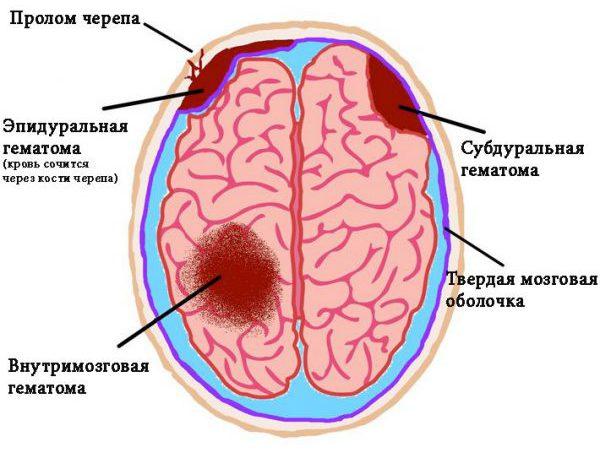 Гематома череп