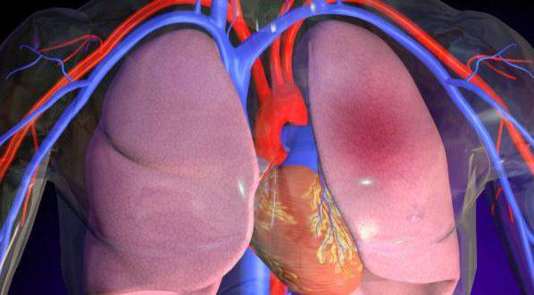 Гипертензия легких