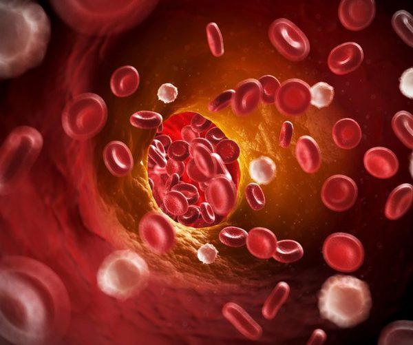 Холестериновые бляшки артерия