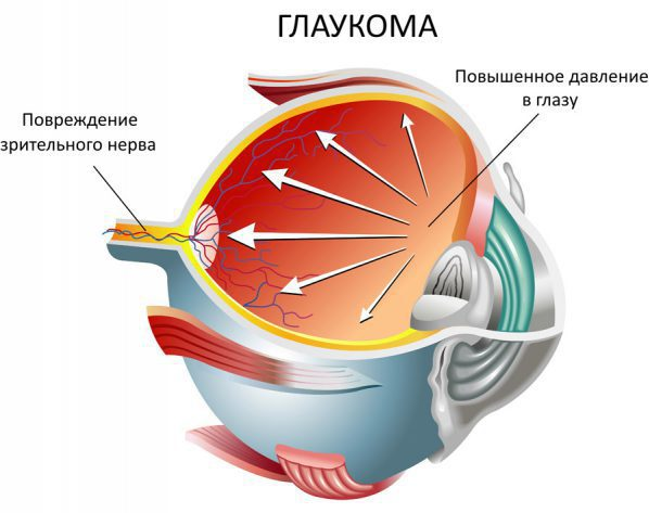 Давление внутриглазной жидкости
