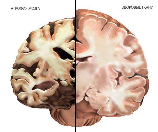 Атрофия тканей мозга